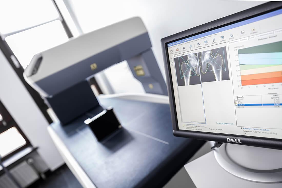 Orthopädie Meerbusch - Vollmert - Potrett - Messungen in der Praxis
